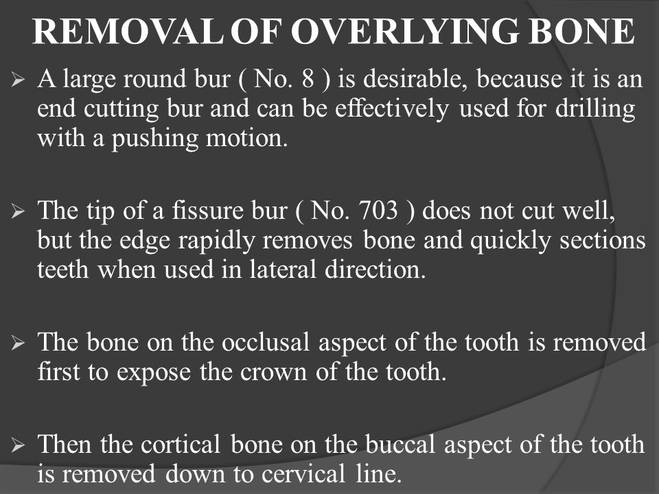 REMOVAL OF OVERLYING BONE  A large round bur ( No. 8 ) is desirable, because it is an end cutting bur and can be effectively used for drilling with a