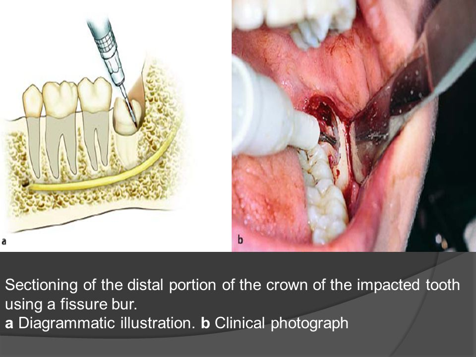 Sectioning of the distal portion of the crown of the impacted tooth using a fissure bur. a Diagrammatic illustration. b Clinical photograph
