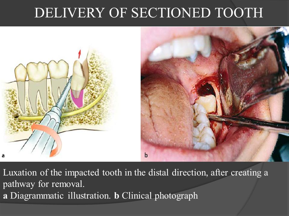 DELIVERY OF SECTIONED TOOTH Luxation of the impacted tooth in the distal direction, after creating a pathway for removal. a Diagrammatic illustration.