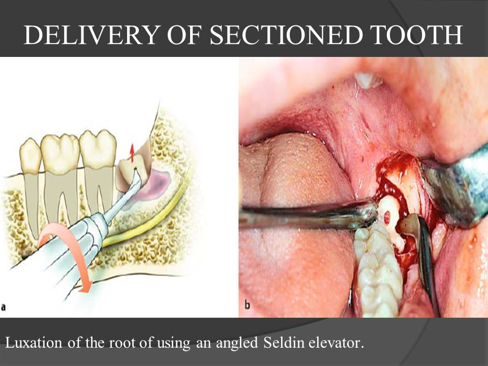 DELIVERY OF SECTIONED TOOTH Luxation of the root of using an angled Seldin elevator.