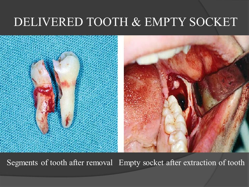 DELIVERED TOOTH & EMPTY SOCKET Segments of tooth after removalEmpty socket after extraction of tooth
