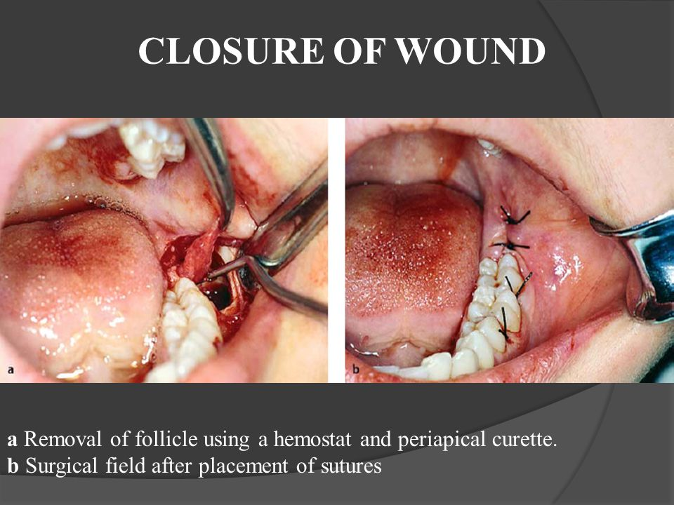 CLOSURE OF WOUND a Removal of follicle using a hemostat and periapical curette. b Surgical field after placement of sutures