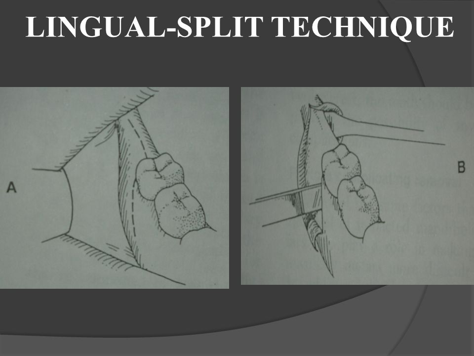 LINGUAL-SPLIT TECHNIQUE