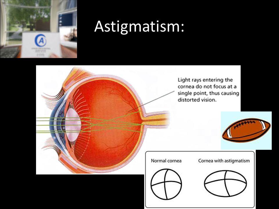 Astigmatism: