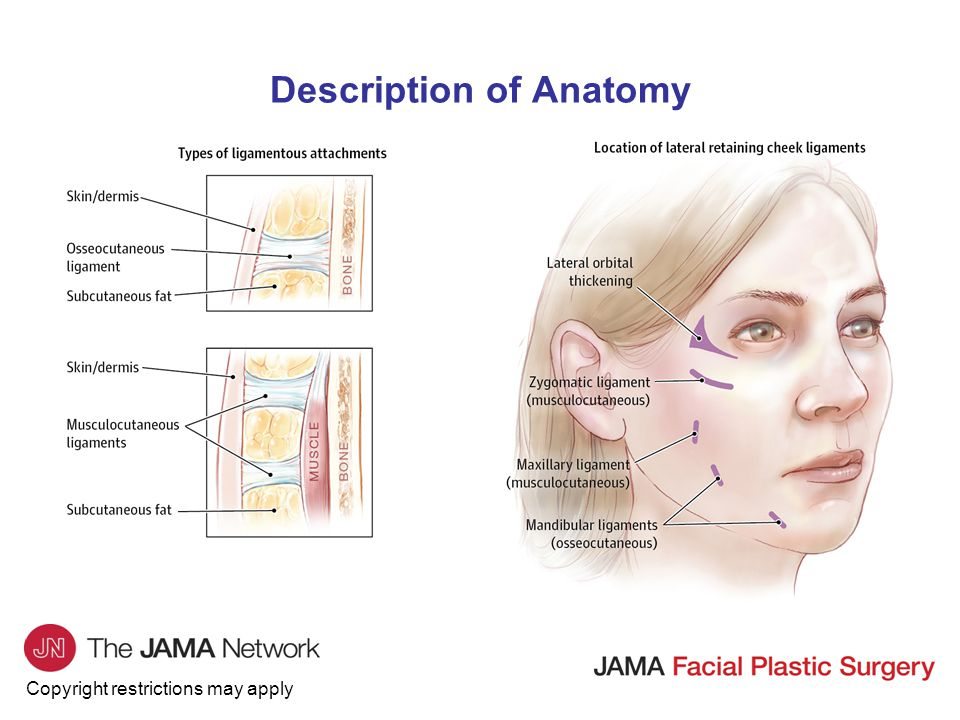 Copyright restrictions may apply Description of Anatomy Aging midface and subunits