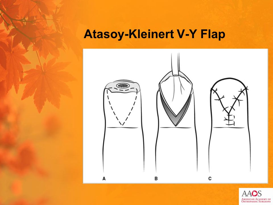 Atasoy-Kleinert V-Y Flap