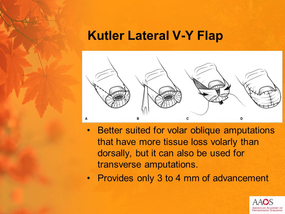 Kutler Lateral V-Y Flap Better suited for volar oblique amputations that have more tissue loss volarly than dorsally, but it can also be used for transverse amputations.