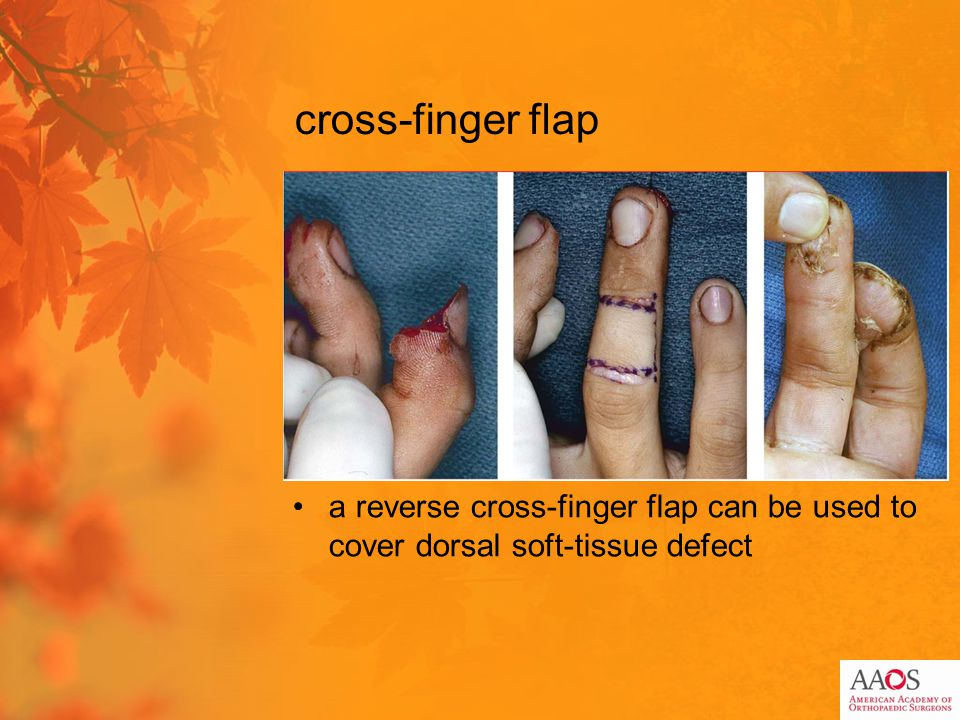 cross-finger flap a reverse cross-finger flap can be used to cover dorsal soft-tissue defect
