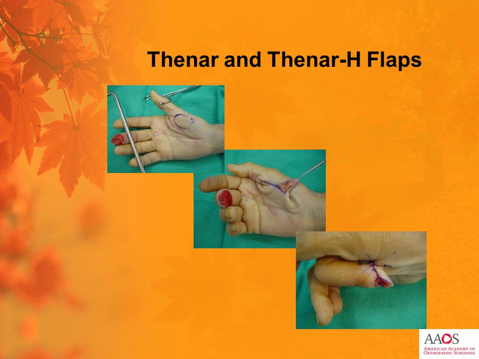 Thenar and Thenar-H Flaps
