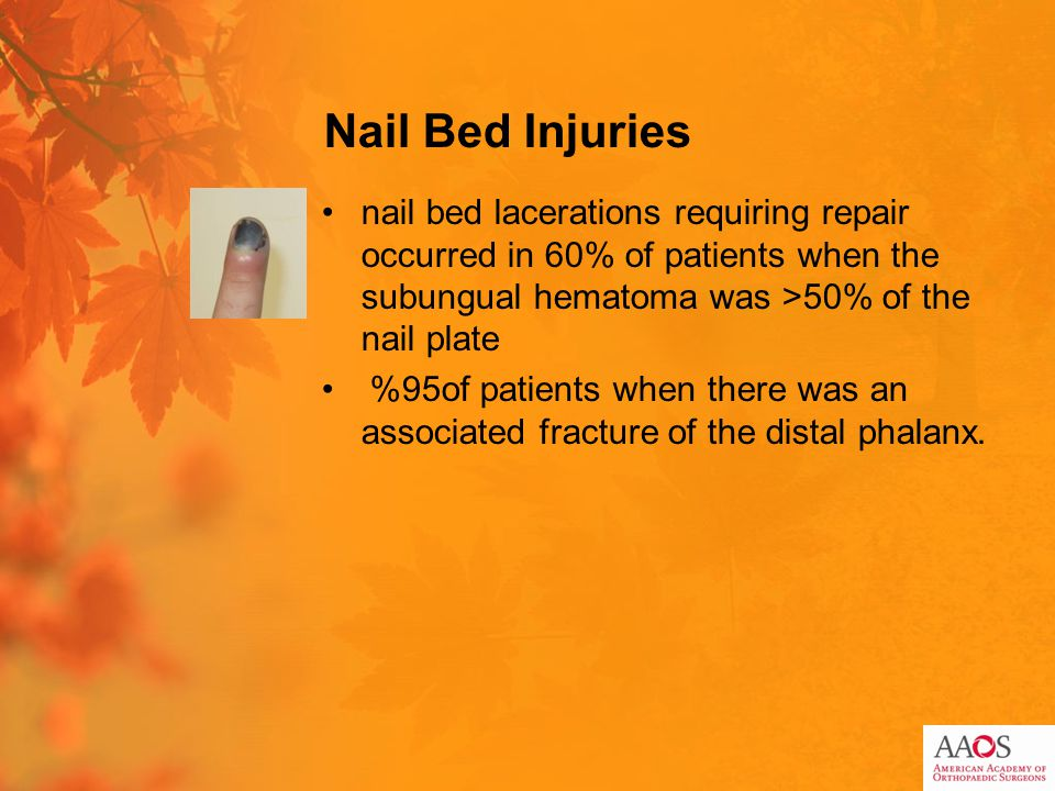 Nail Bed Injuries nail bed lacerations requiring repair occurred in 60% of patients when the subungual hematoma was >50% of the nail plate 95%of patients when there was an associated fracture of the distal phalanx.