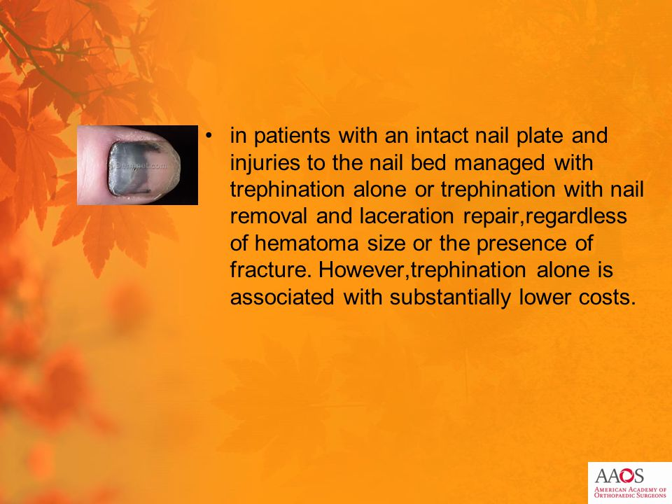 in patients with an intact nail plate and injuries to the nail bed managed with trephination alone or trephination with nail removal and laceration repair,regardless of hematoma size or the presence of fracture.
