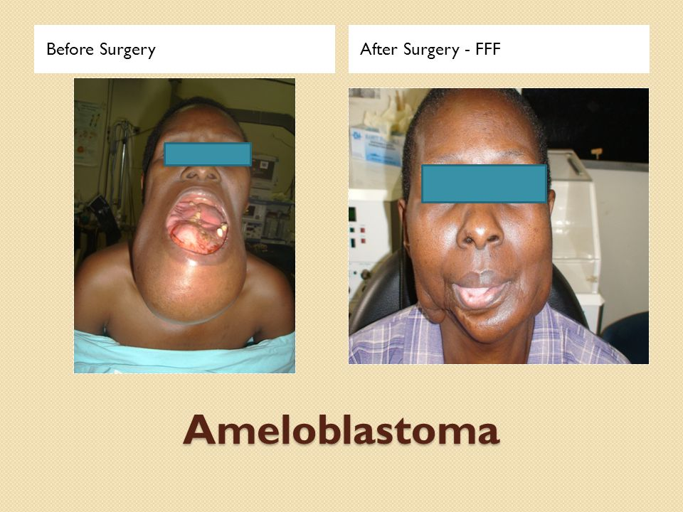 Ameloblastoma Before SurgeryAfter Surgery - FFF