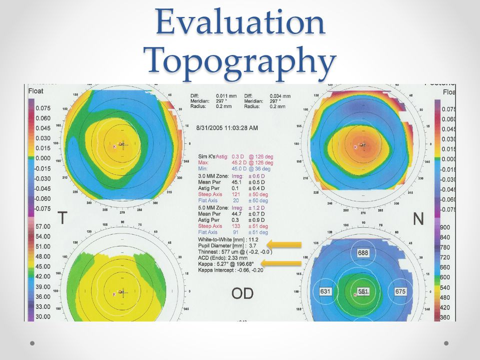 Evaluation Topography