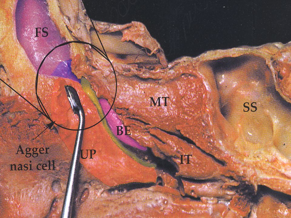 Pearl #4 Positively Identify the Skull Base Posteriorly  Skeletonize from posterior to anterior  Open cells immediately posterior to the middle turbinate  Identify the sinus with a seeker