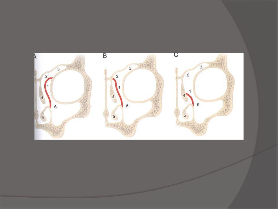 Draf III  Modified Lothrop  Interfrontal septum  Nasal septum  Frontal sinus floor