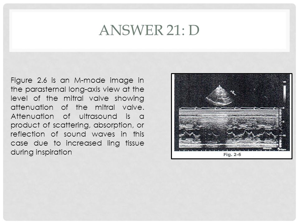 ANSWER 21: D Figure 2.6 is an M-mode image in the parasternal long-axis view at the level of the mitral valve showing attenuation of the mitral valve.