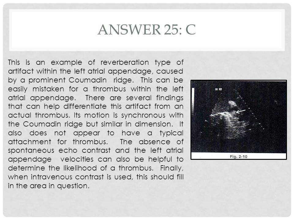 ANSWER 25: C This is an example of reverberation type of artifact within the left atrial appendage, caused by a prominent Coumadin ridge. This can be