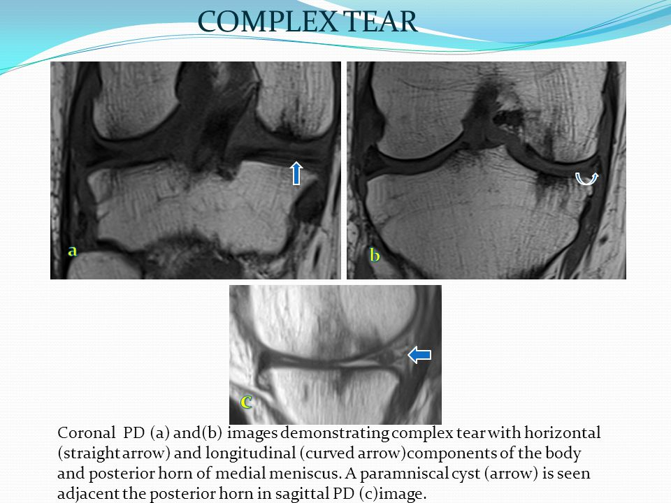 Coronal PD (a) and(b) images demonstrating complex tear with horizontal (straight arrow) and longitudinal (curved arrow)components of the body and posterior horn of medial meniscus.