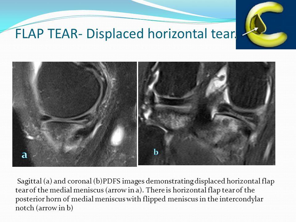 FLAP TEAR- Displaced horizontal tear.