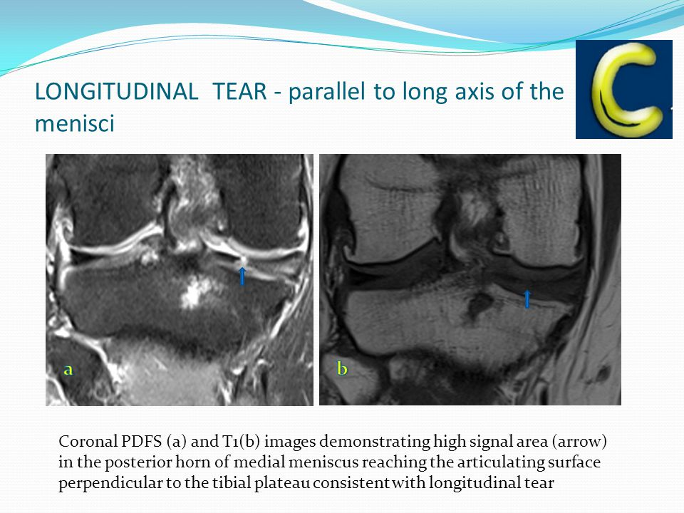 LONGITUDINAL TEAR - parallel to long axis of the menisci Coronal PDFS (a) and T1(b) images demonstrating high signal area (arrow) in the posterior horn of medial meniscus reaching the articulating surface perpendicular to the tibial plateau consistent with longitudinal tear