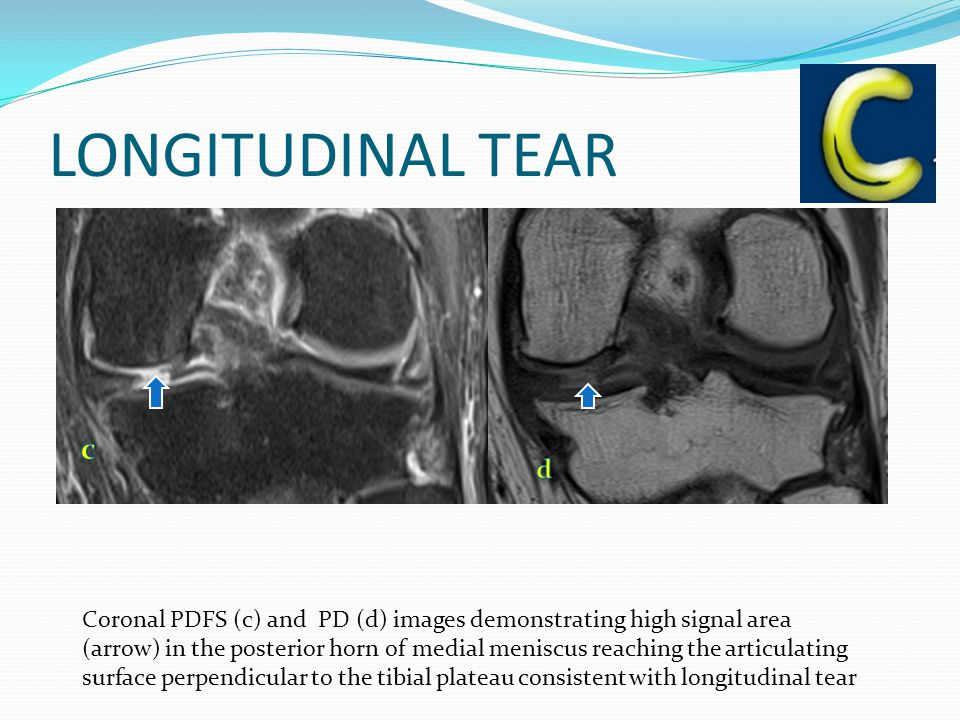 LONGITUDINAL TEAR Coronal PDFS (c) and PD (d) images demonstrating high signal area (arrow) in the posterior horn of medial meniscus reaching the articulating surface perpendicular to the tibial plateau consistent with longitudinal tear