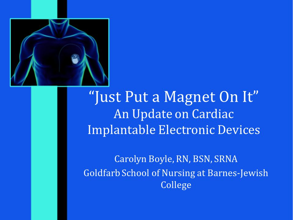 """Just Put a Magnet On It"" An Update on Cardiac Implantable Electronic Devices Carolyn Boyle, RN, BSN, SRNA Goldfarb School of Nursing at Barnes-Jewish"