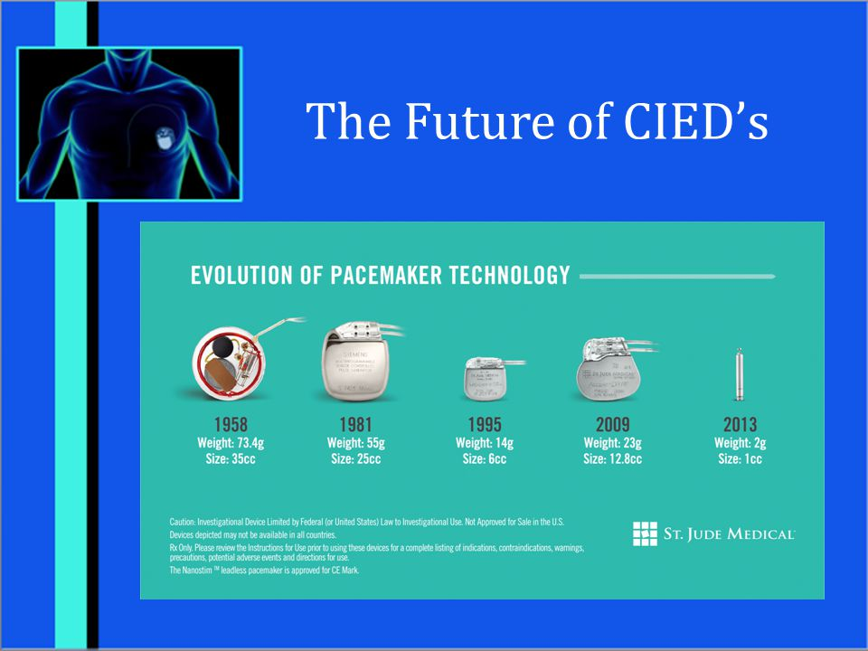 The Future of CIED's