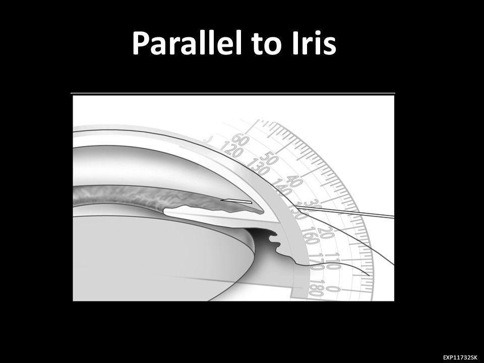 Parallel to Iris EXP11732SK