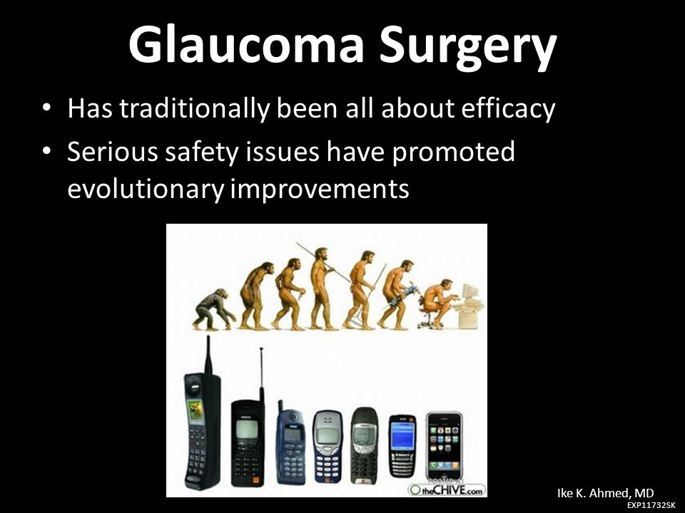 Glaucoma Surgery Has traditionally been all about efficacy Has traditionally been all about efficacy Serious safety issues have promoted evolutionary