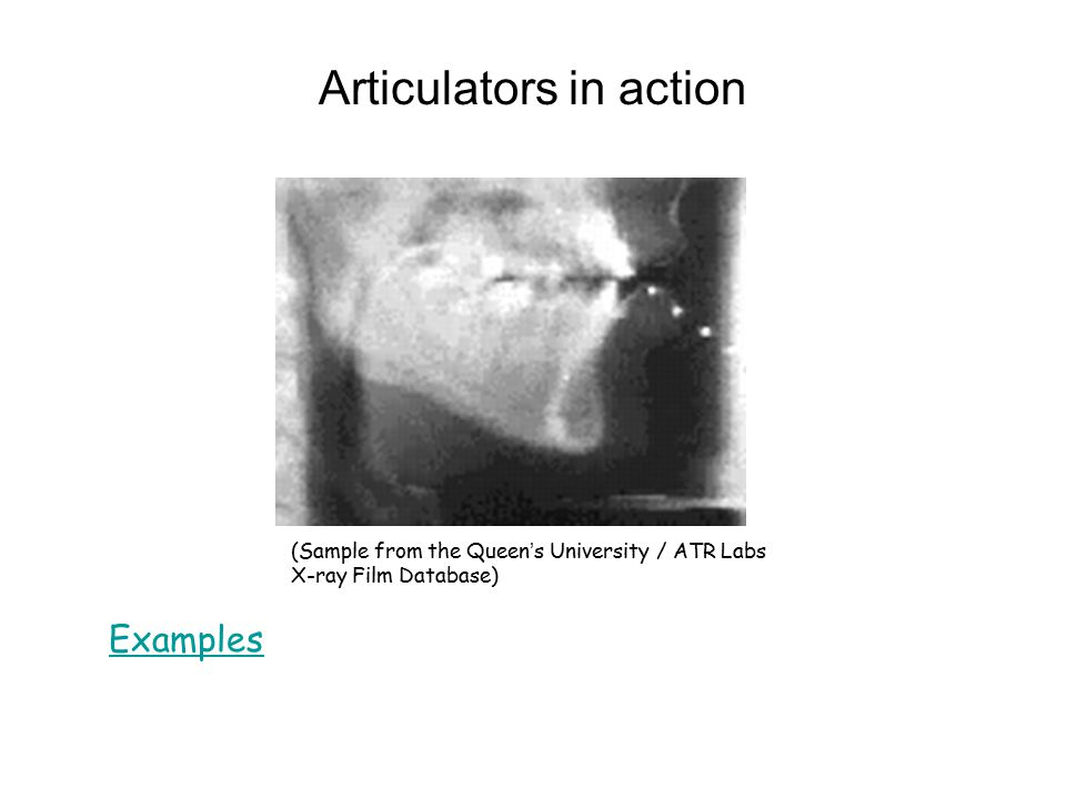 Vocal fold vibration [UCLA Phonetics Lab demo]