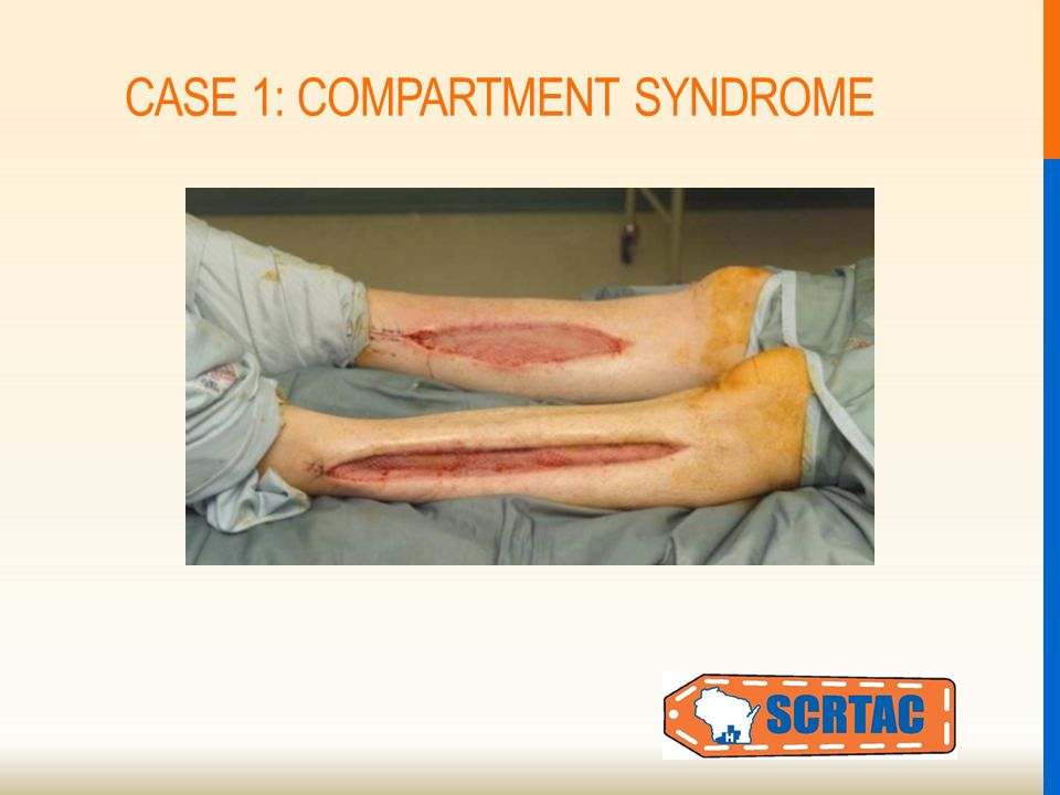 CASE 1: COMPARTMENT SYNDROME