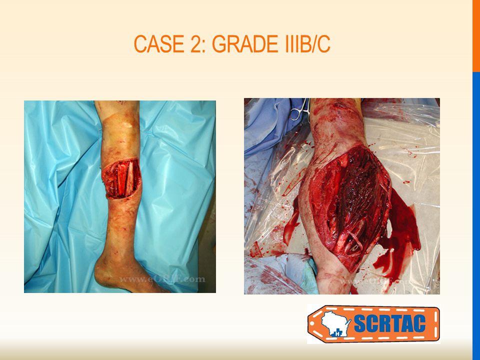 CASE 2: GRADE IIIB/C
