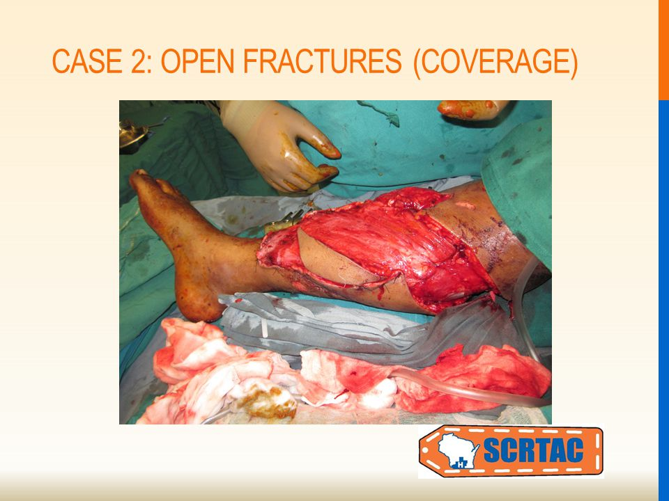 CASE 2: OPEN FRACTURES (COVERAGE)