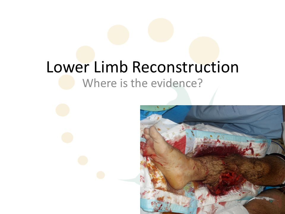 Antibiotic Prophylaxis There have been only 3 relevant reviews 1.Gosselin et al 2004: Antibiotics for preventing infection in open limb fractures.