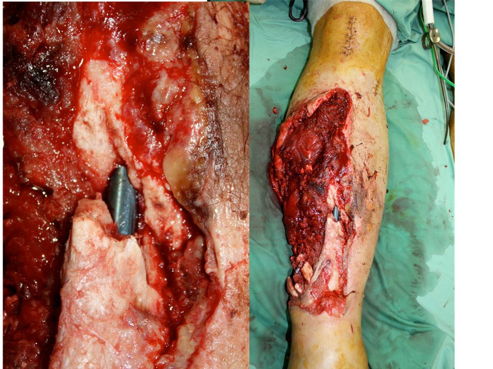 Harry (PRS 09) Developed a murine open tibial fracture model.