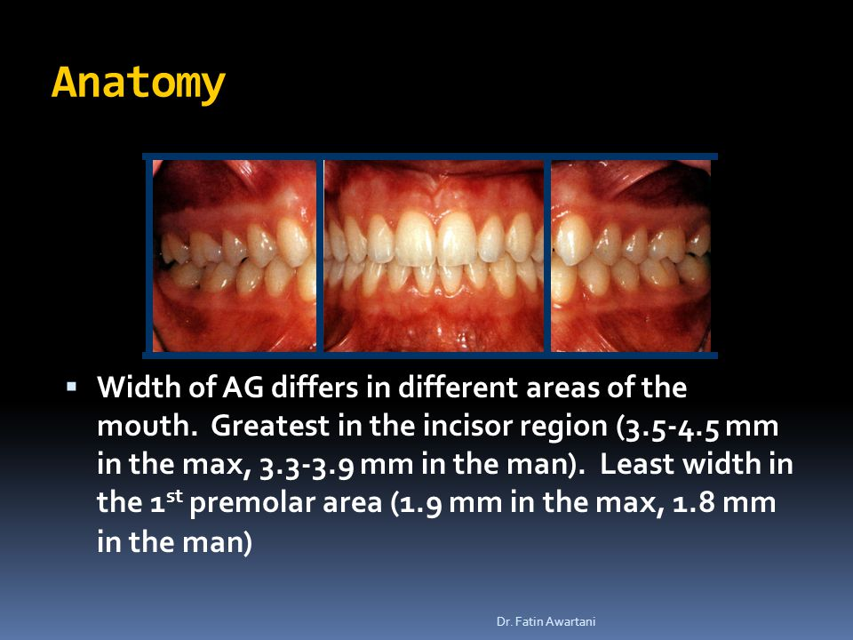  Width of AG differs in different areas of the mouth.