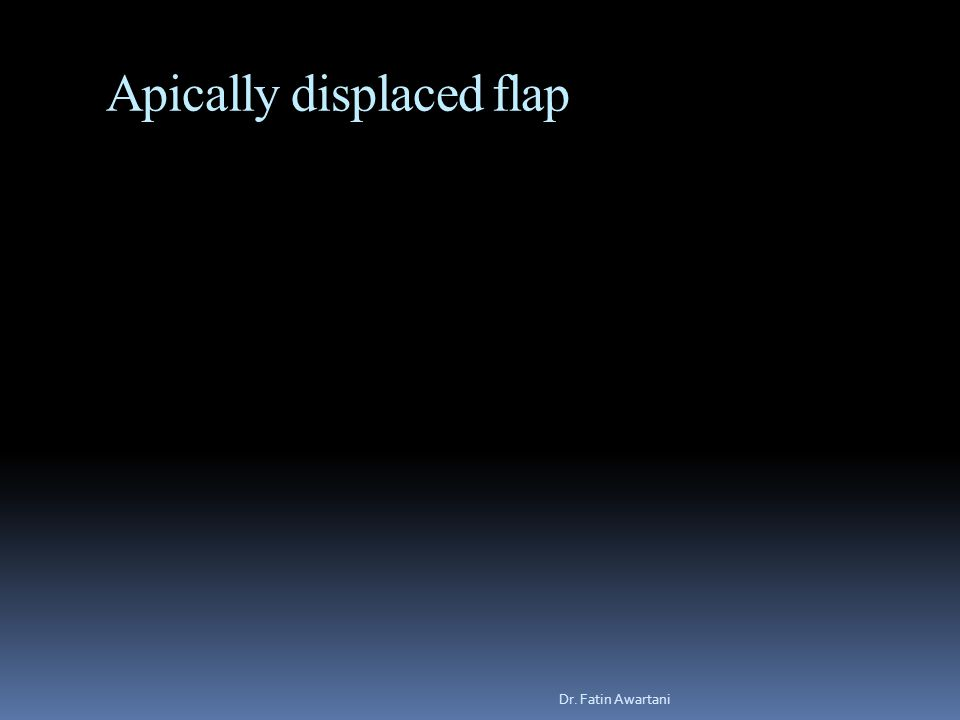 Apically displaced flap Dr. Fatin Awartani