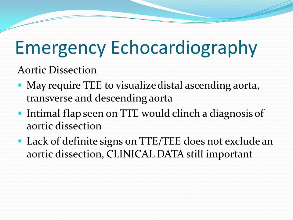 Echo: Aortic dissection Suprasternal view of aorta showing the intimal flapColor flow doppler within the false and true lumen
