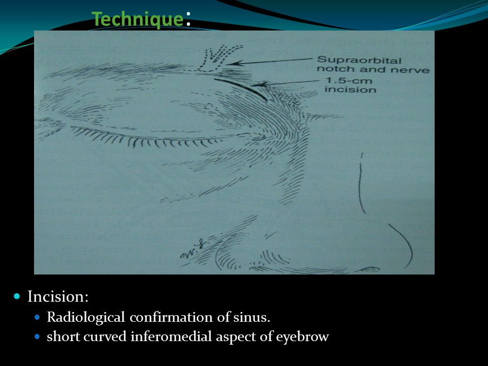Technique : Incision: Radiological confirmation of sinus. short curved inferomedial aspect of eyebrow