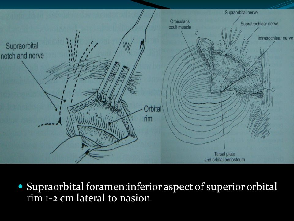 Supraorbital foramen:inferior aspect of superior orbital rim 1-2 cm lateral to nasion