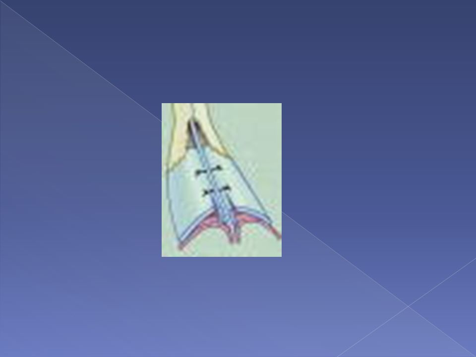 This auto-spreader is a technique in which the mucoperichondrium of the underside of the upper lateral cartilage is elevated and then released from its cartilaginous