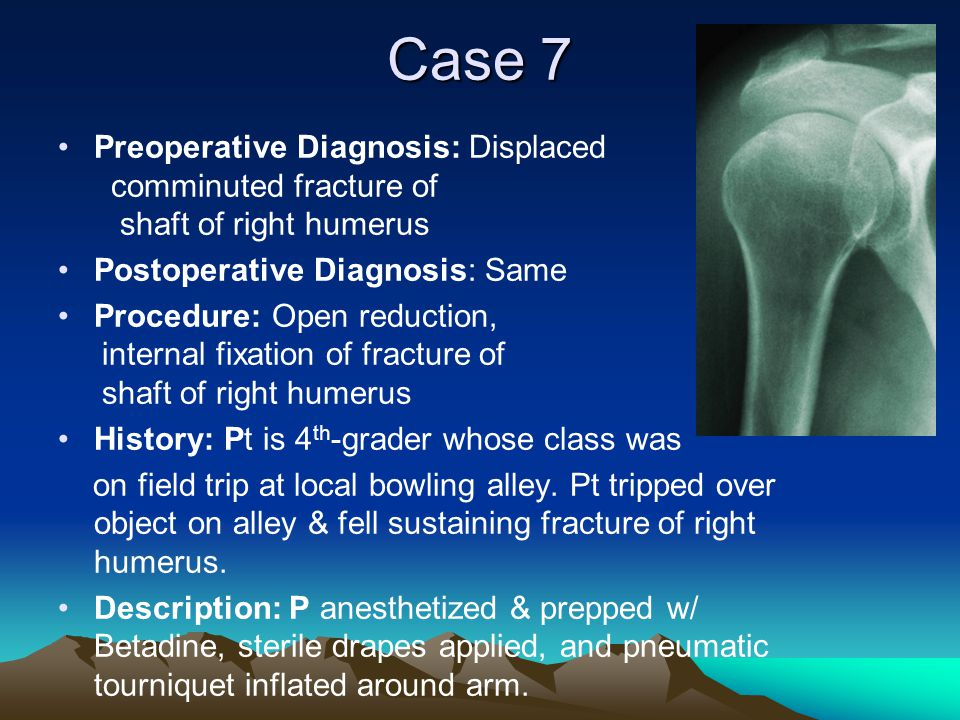 Case 7 Preoperative Diagnosis: Displaced comminuted fracture of shaft of right humerus Postoperative Diagnosis: Same Procedure: Open reduction, intern