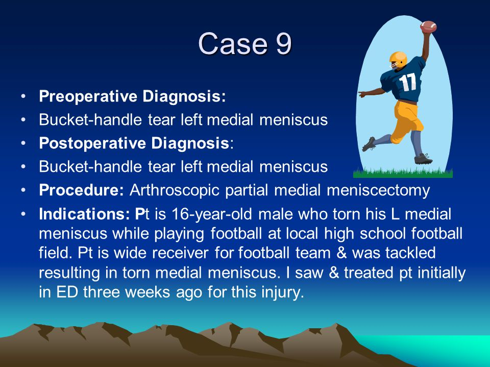 Case 9 Preoperative Diagnosis: Bucket-handle tear left medial meniscus Postoperative Diagnosis: Bucket-handle tear left medial meniscus Procedure: Art