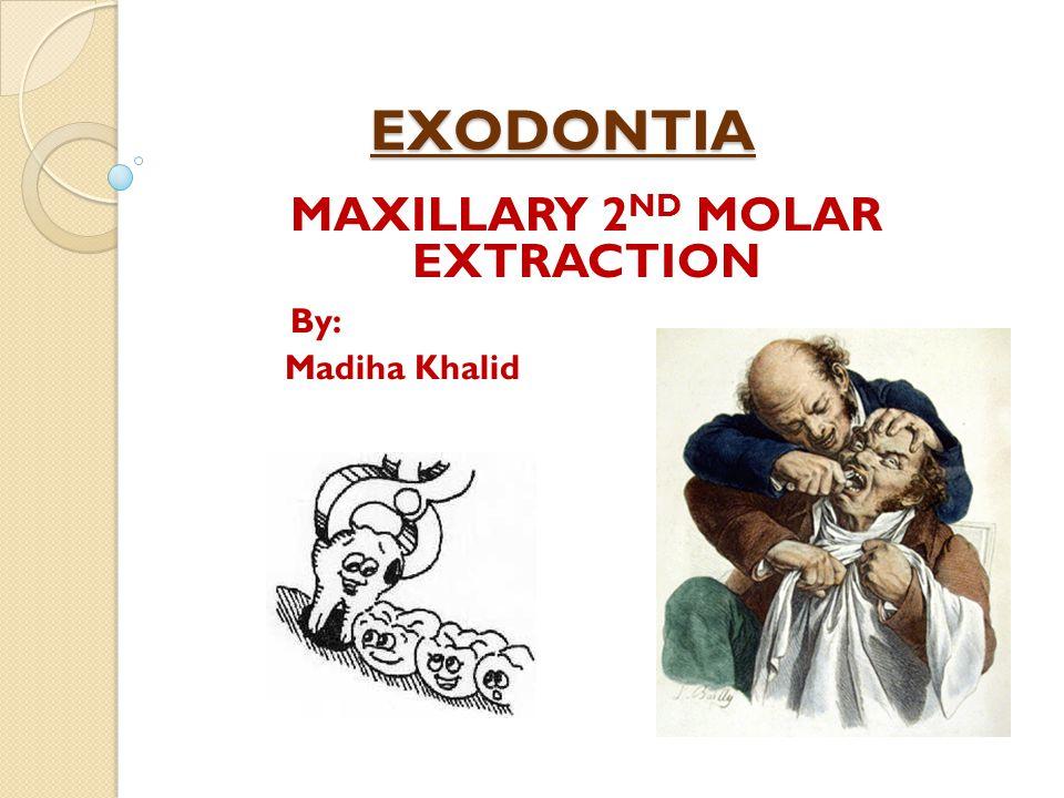 EXODONTIA MAXILLARY 2 ND MOLAR EXTRACTION By: Madiha Khalid