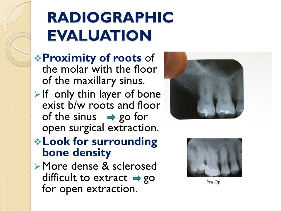 RADIOGRAPHIC EVALUATION  Proximity of roots of the molar with the floor of the maxillary sinus.  If only thin layer of bone exist b/w roots and floo