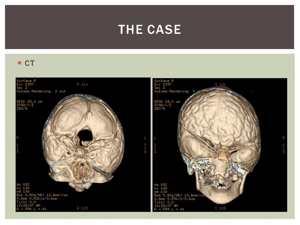  CT THE CASE
