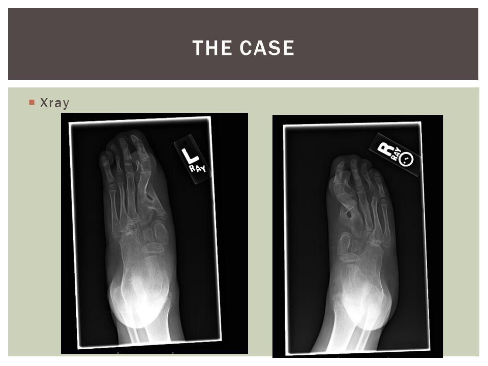 Xray THE CASE