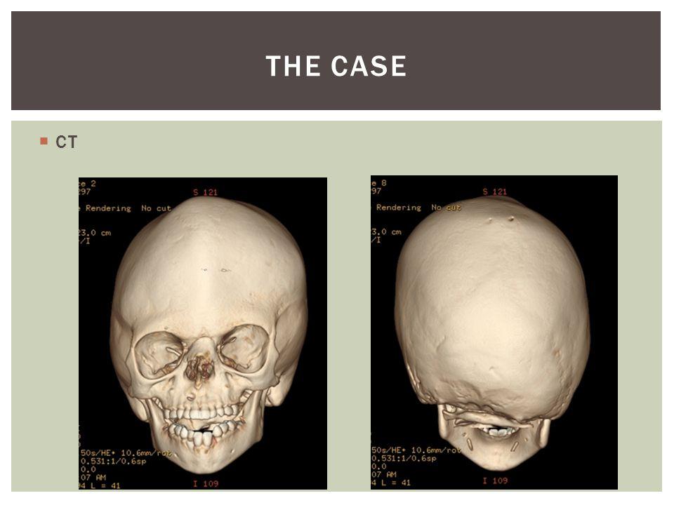  CT THE CASE