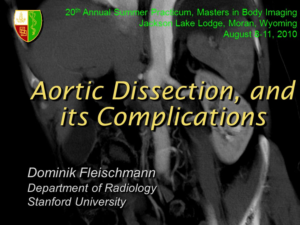 Aortic Dissection, and its Complications Dominik Fleischmann Department of Radiology Stanford University Dominik Fleischmann Department of Radiology S