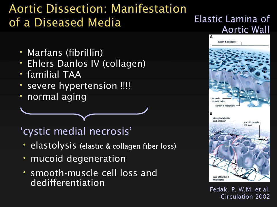 lumen AdventitaMediaIntima Aortic Dissection: Manifestation of a Diseased Media 'cystic medial necrosis' elastolysis (elastic & collagen fiber loss) m